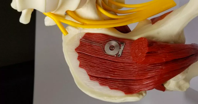 This Wireless Implant Heals Damaged Nerves and Then Self-Destructs