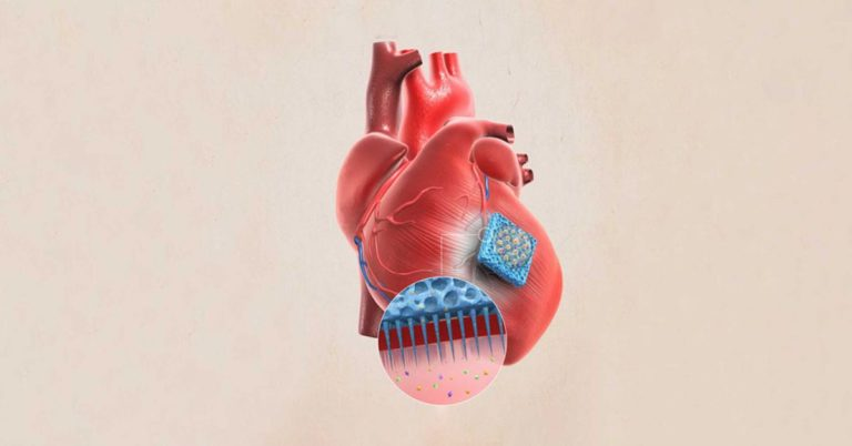 A Needle-Covered Patch Could Help Heal Damaged Hearts